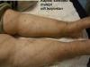 kaposi-sarkomu-multipl-cilt-lezyonlari-resize