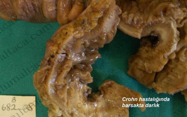 crohn-darlik