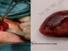 Küçük kesiyle boyundan paratiroid adenomu ameliyatı